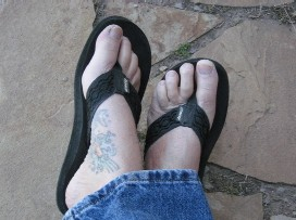 Flip Flop Feet Get Callus Cracks